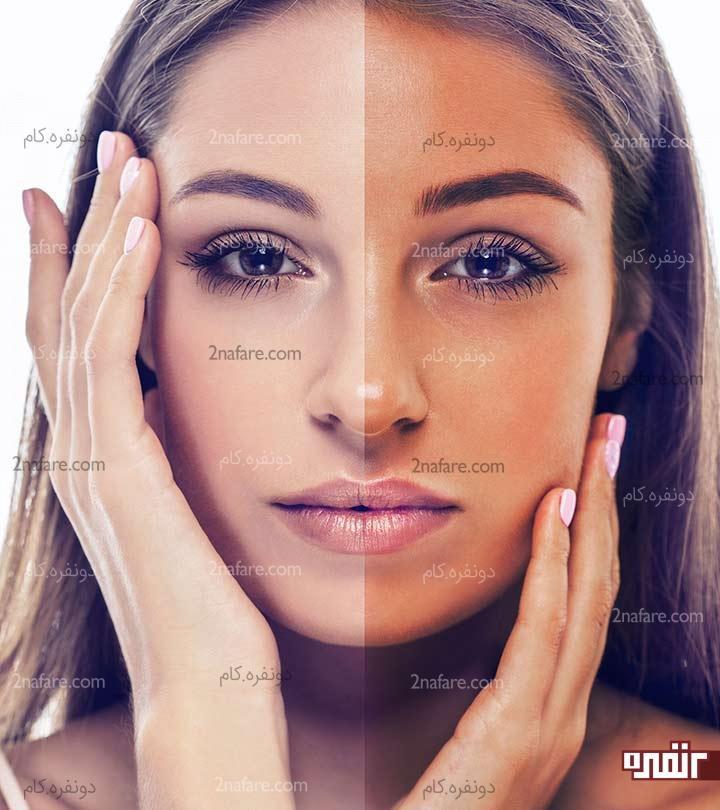 چند ماسک خانگی برای از بین بردن برنزگی پوست