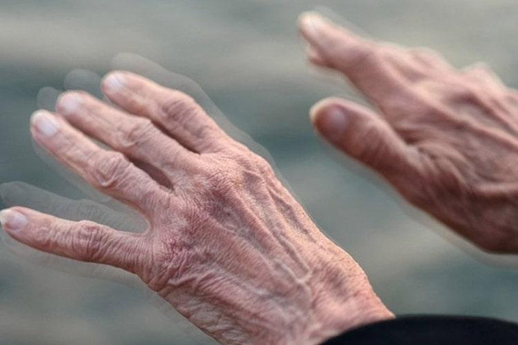 مهم ترین عامل خطر ابتلا به پارکینسون، آغاز زودرس پارکینسون ژنتیکی و ارثی