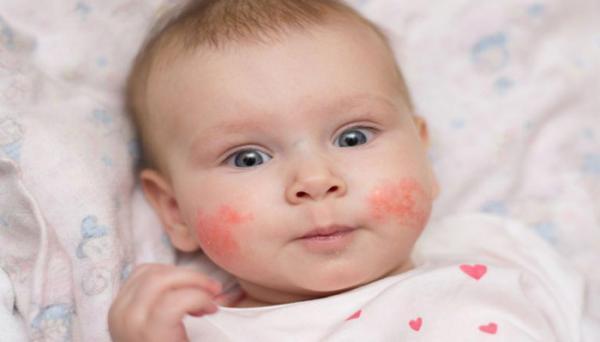 حساسیت بچه ها؛ معرفی انواع حساسیت در بچه ها و راهکارها